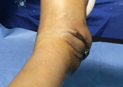 Luz Huaman After one Club Foot Surgery