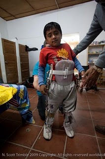 'Carlos' walked a short distance almost by himself in his new brace.