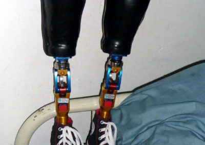 Future Prostheses for Juan Carlos