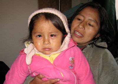 Maria after Stribismus Surgery