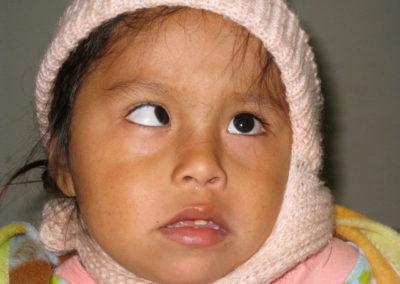 Maria before Stribismus Surgery