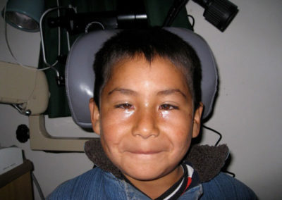 Vicente after Stribismus Surgery