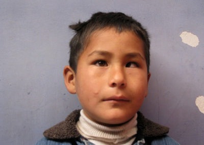 Vicente before Stribismus Surgery