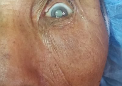 Patient with a Dense Cataract